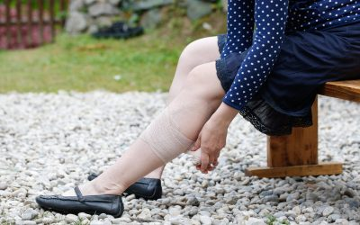 Medical Compression Stockings and Summer